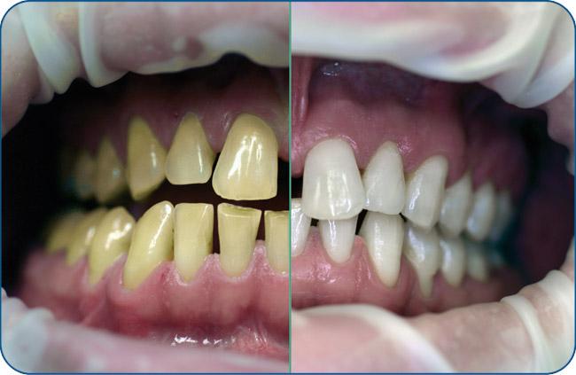 bleaching-vergleichsbild1
