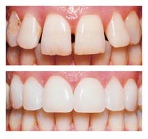 Denver_Dentist_Porcelain_Veneers-bef