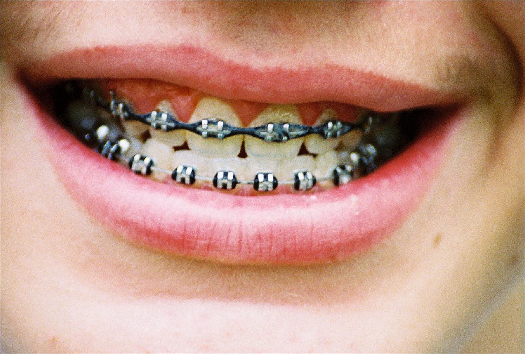 braces ortho