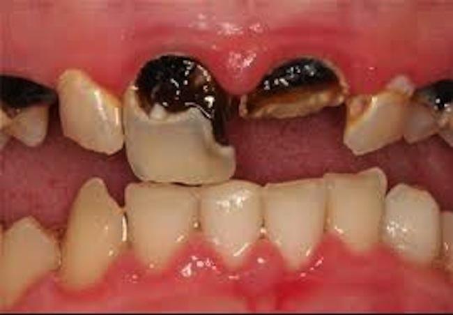 dental caries3