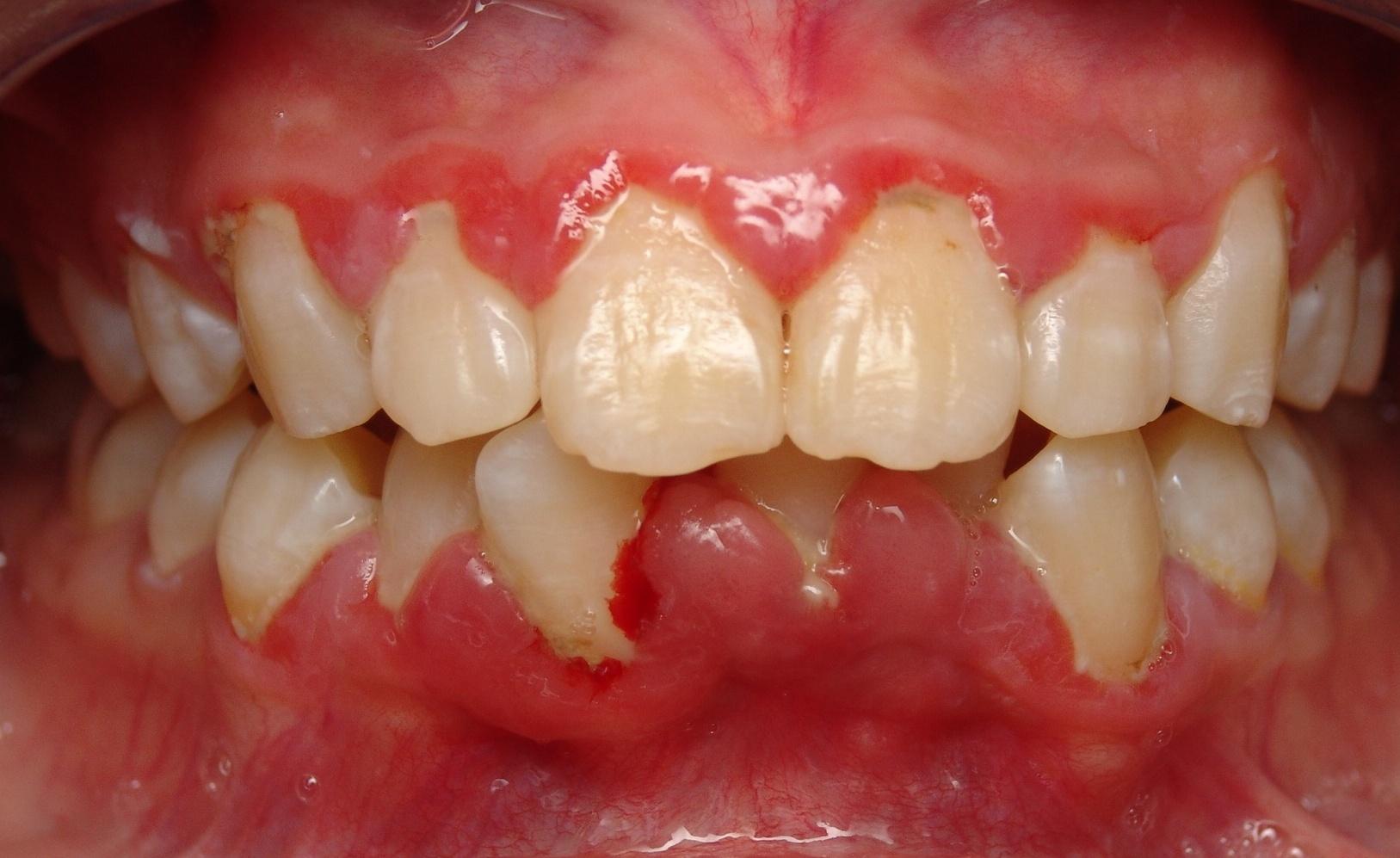 bleeding gum2
