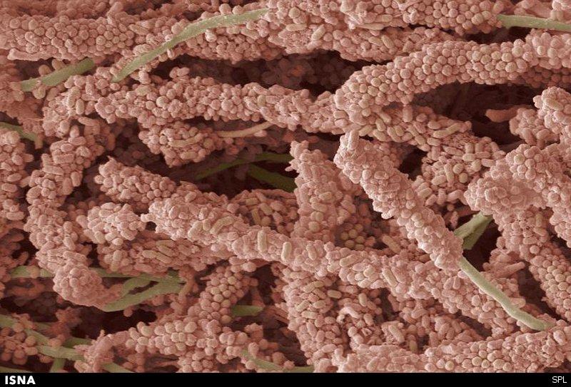 dental plaque6