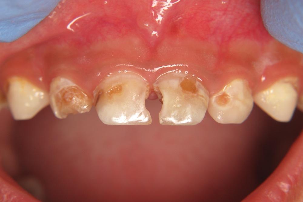 Severe_dental_disease