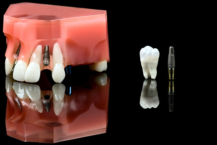 dental-implant-720