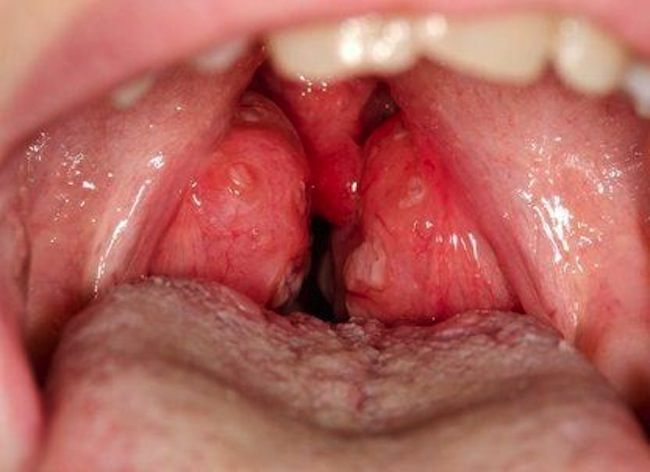 Close-up of swollen and infected tonsils in the mouth in a 10 year old male patient with streptococcal (bacterial) tonsillitis. Tonsillitis is a bacterial or viral infection that causes a sore throat and fever.
