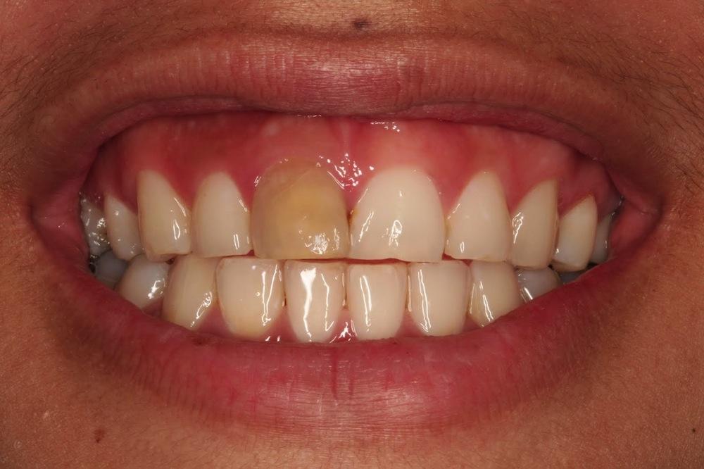 Internal-Teeth-Bleaching-RCT-Endodontics-Silver-Springs-Endodontist