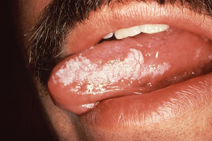 aids oral symptoms