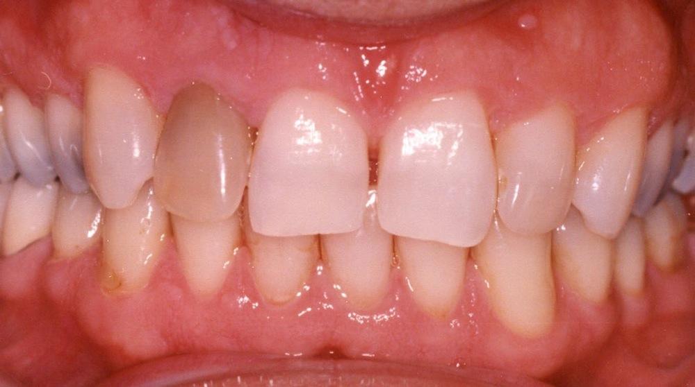 discoler teeth