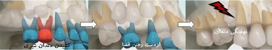 کشیدن زودهنگام دندان شیری
