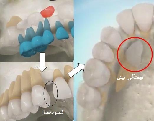 نهفتگی دندان نیش