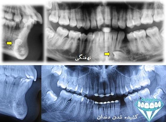 دندان نهفته کشیدنی