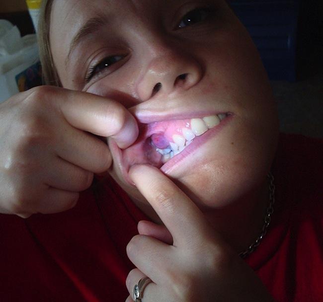Abscess-Tooth