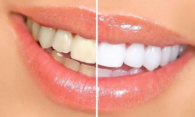 home_teeth_whitening-