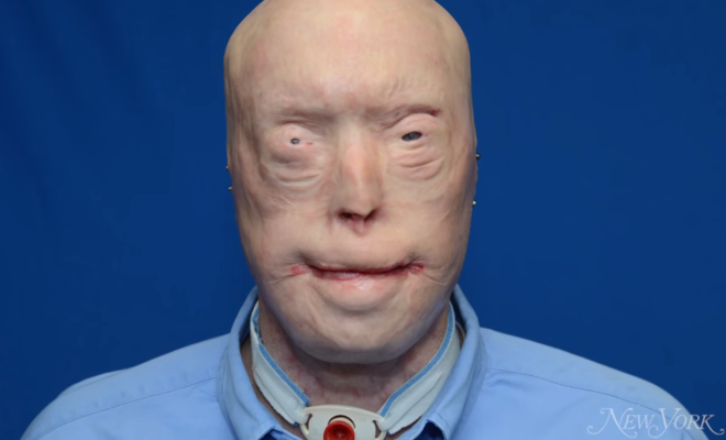 This Facial Transplant Is Being Described As A Medical Miracle
