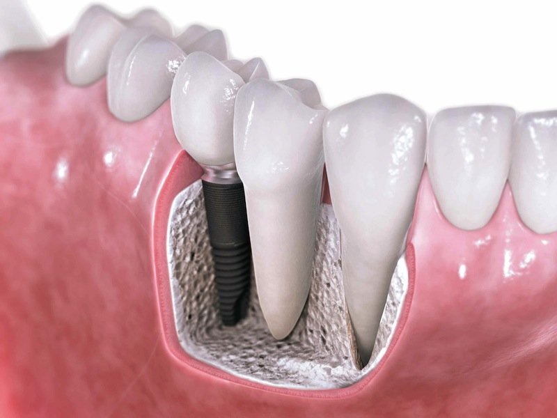 Dental-Implants copy