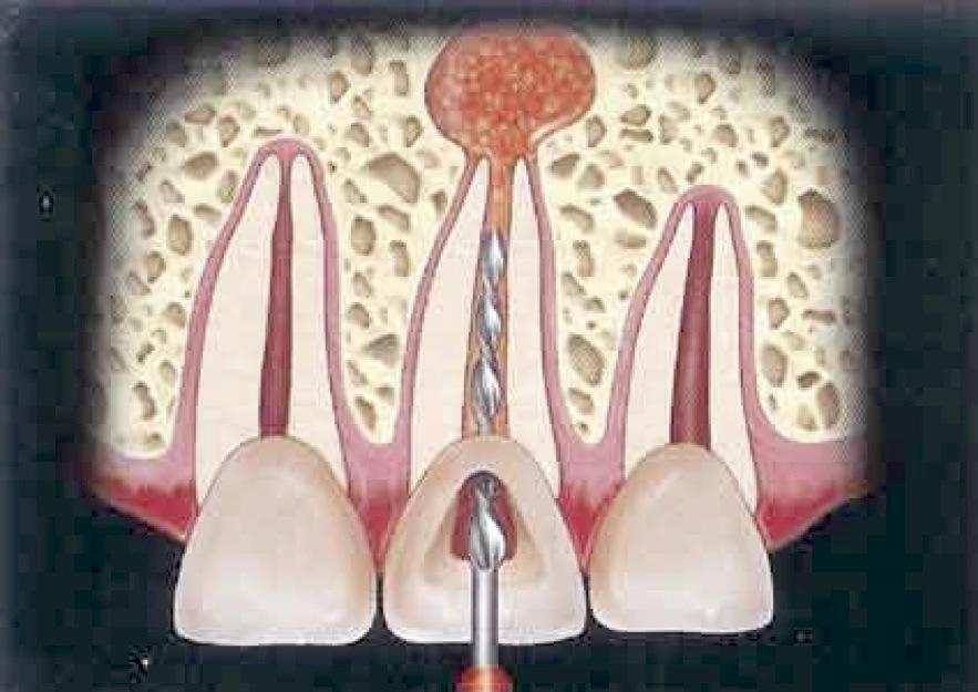 rotary-endodontics