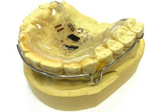 denture 1
