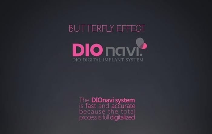 dionavi 3