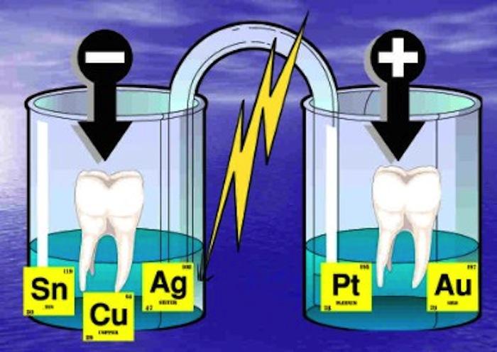 galvanism dentistry2