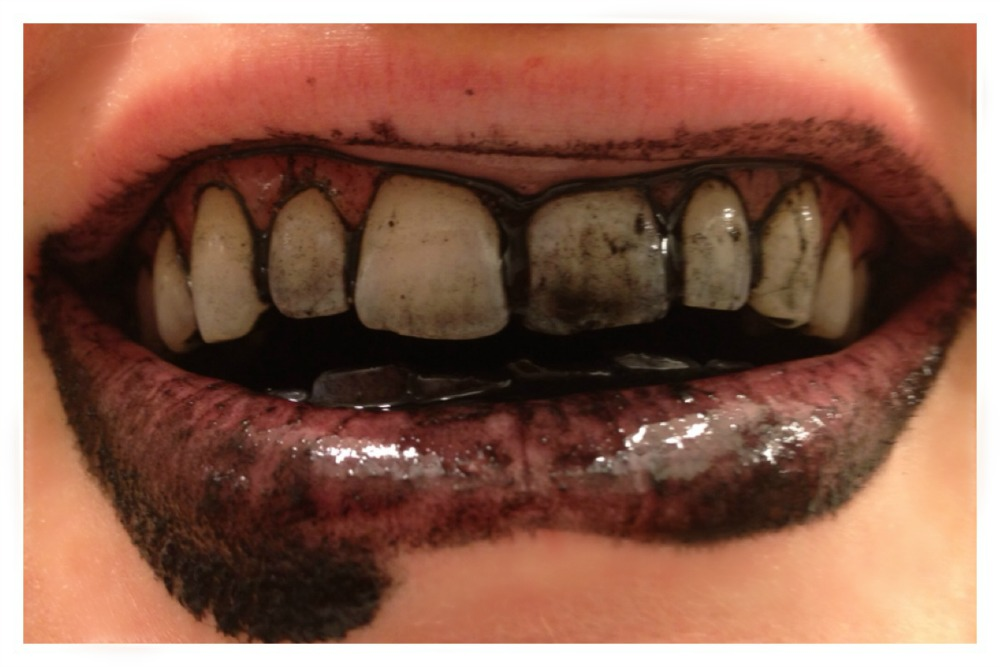 charcoal teeth whitening trend6