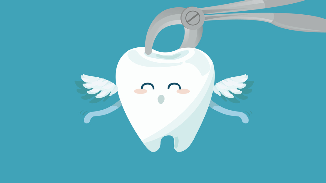 tooth extraction-