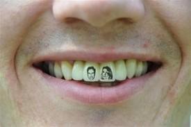teeth_tattoo_pic2