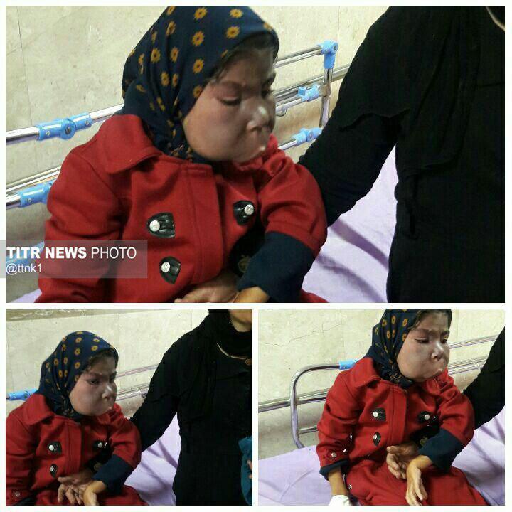 سرطان لثه+شراره محمدی