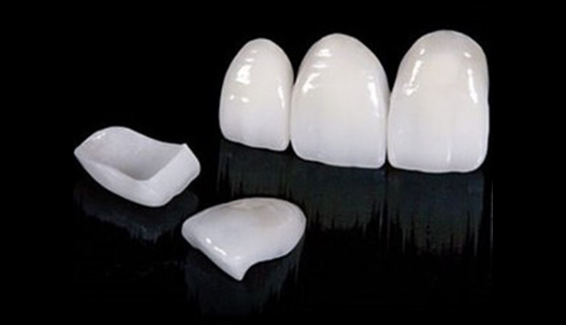 DENTAL LAMINATE CEMENTATION1