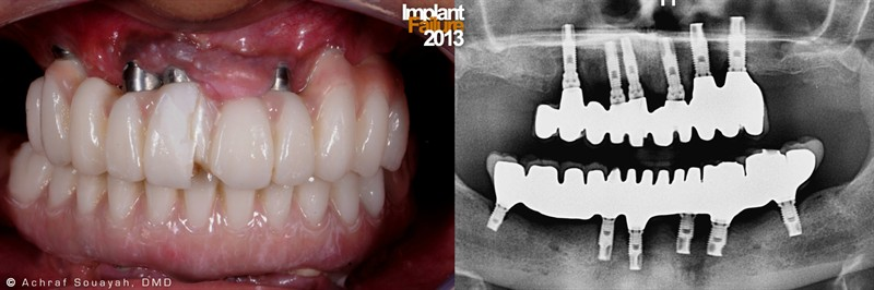 failures in dentistry